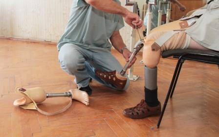 amputation-injury-prosthetic-leg